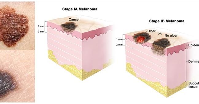 Cara Ampuh Menyembuhkan Kanker Kulit Melanoma Herbal Alami ...