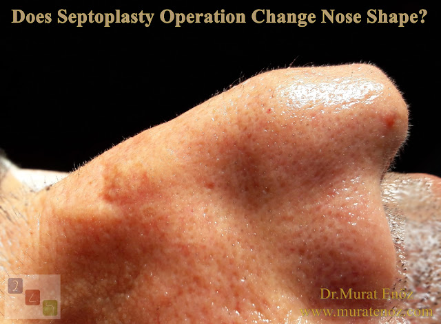 Does the nose shape correct after septoplasty operation? - Can septoplasty change the shape of the nose? - Will septoplasty change the outside shape of nose? - Does septoplasty operation change nose shape?  - Does septoplasty imporove nose shape? - Nasal septum deviation - Open technique septoplasty and nose shape - The shape of the nose generally does not change after the closed technique septoplasty operation!
