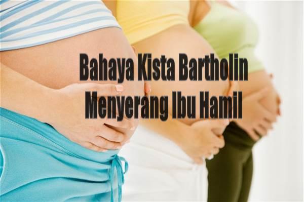 Bahaya Kista Bartholin Menyerang Ibu Hamil
