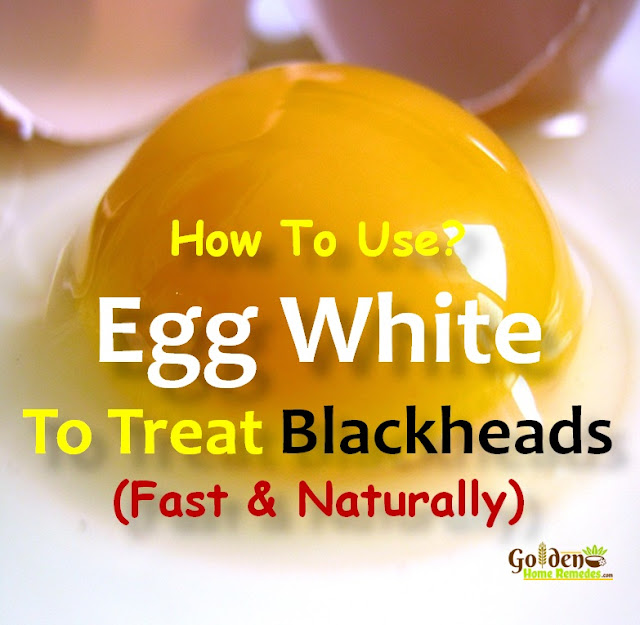 Egg White For Blackheads, How To Get Rid Of Blackheads, Home Remedies For Blackheads, How To Remove Blackheads, Blackheads Treatment, How To Treat Blackheads, How to Get Rid of Blackheads Overnight, How To Get Rid Of Blackheads Fast, Blackheads Home Remedy, How To Cure Blackheads, How To Take Blackheads Out, Blackheads Remedies, Treatment For Blackheads,