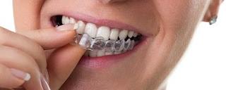 Invisalign Dentist Petaluma CA