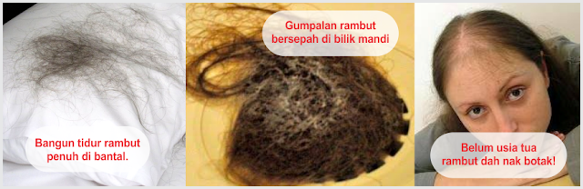 PENAWAR MASALAH RAMBUT GUGUR