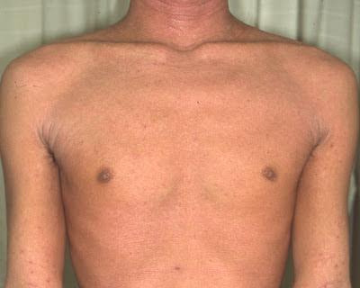 dr fukaya topical steroid withdrawal