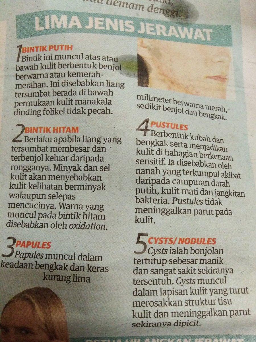 Kenali 5 Jenis Jerawat.. Mana satu 'favorite' wajah anda?