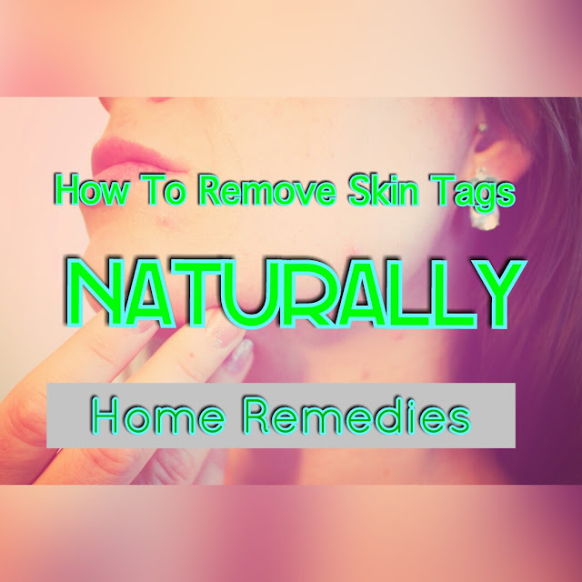 Home Remedies: How to Remove Skin Tags Naturally