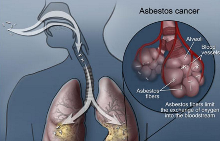 Asbestos Cancer Life Expectancy