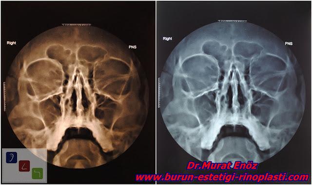Burun ameliyatı öncesi görüntüleme yöntemleri - Sinüs grafisi - Sinüzit filmi - Paranazal Sinüs Tomografisi