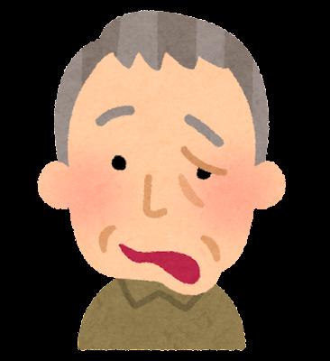 顔の麻痺のイラスト(FAST)