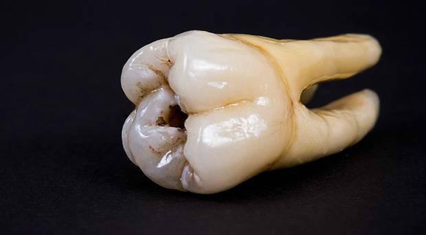 كعالم آخر مستقلٍ بذاته تحت الميكروسكوب tooth.jpg