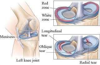 http://drraju.in/treatments-offered/arthroscopy/knee-arthroscopy/meniscus-injury/index.html