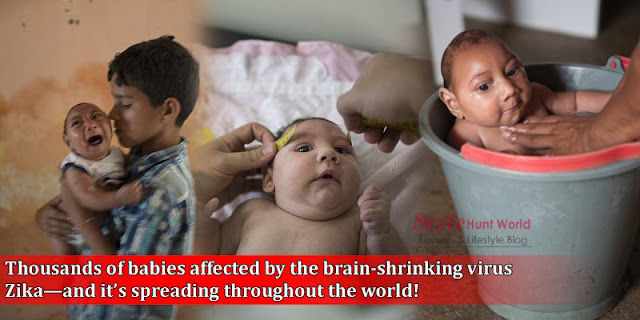 OMG - Today Thousands Of Babies Affected By The Brain-Shrinking Virus 'Zika'
