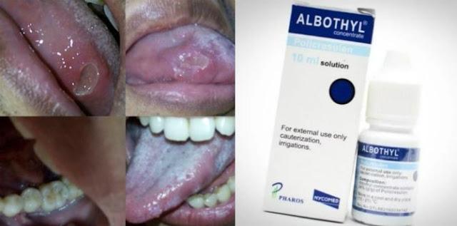 Jangan Pakai Albothyl Untuk Obati Sariawan, Ini Bahayanya!