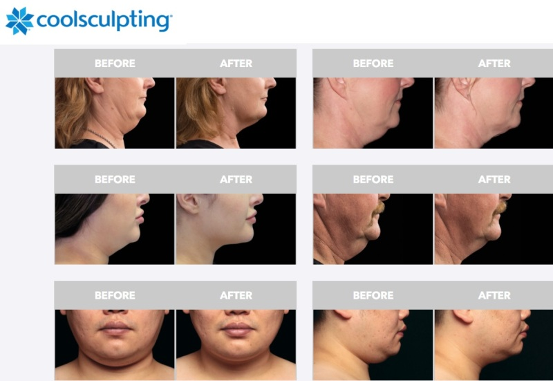 zeltiq coolsculpting coolmini double chin before after photos