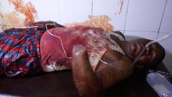 Graphic: Man chops off relative's arm over land dispute in Delta State