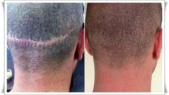 Трихопигментация волос цена