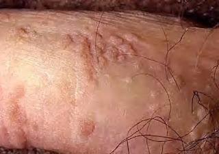 Foto Pengobatan Jamur Kutil Kelamin Membunuh Virus Kutil