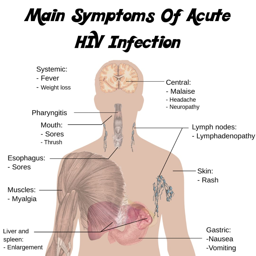 What are HIV and AIDS? Symptoms, Treatment and Causes - Health and