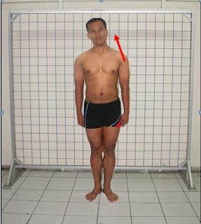 pemeriksaan kelainan tubuh Kepala (miring kanan/kiri):