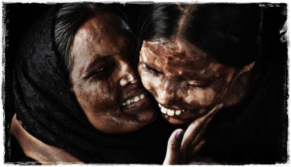 EMOSIONAL! 15 Potret Menyentuh Korban Siraman Air Keras, Bukti Bahwa Hati Wanita Sekuat Karang!