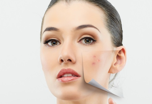 Todo sobre el acné - tipos, causas, tratamientos y; Consejos