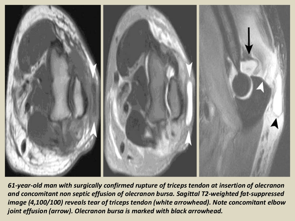 MRI Musculo-Skeletal Section: Bursa of elbow joint.