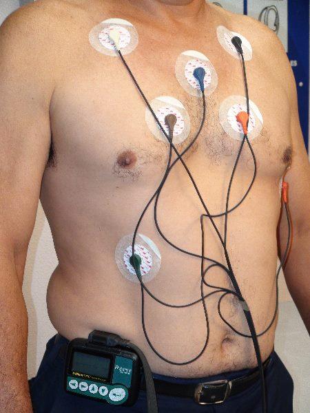 Miocardiopat 237 A Hipertr 243 Fica Obstructiva Medicusmeo