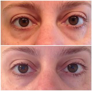 #nerium, #eyeseeresults, #beauty, #momlife, #nofilter, #nomakeup, skincare
