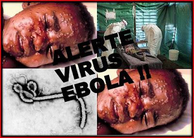 Los Gérmenes Y Virus Más Letales Del Mundo