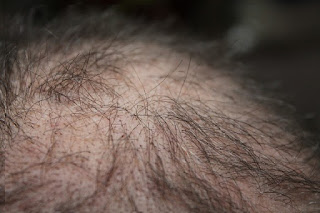 Is Propecia Effective Against Treating Hair Loss?