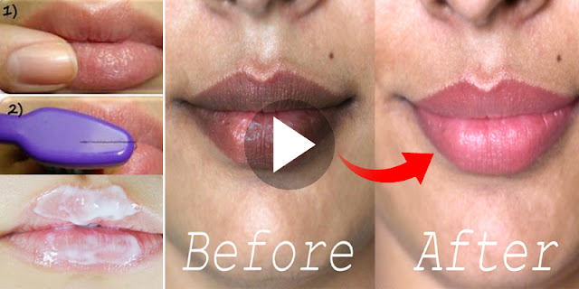 How To Lighten Dark Lips And Get Pink Color Lips Within 1 Day!