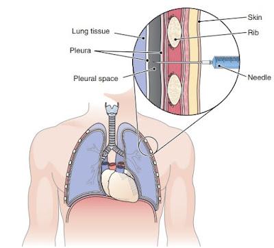 Thoracentesis
