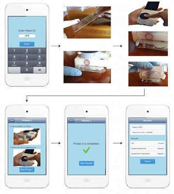 أداة Smartphone hiv للكشف عن مرض الإيدز بواسطة الهاتف الذكي