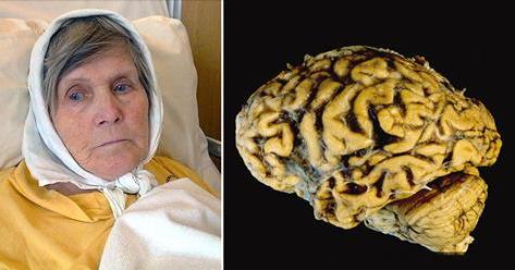 Mujer revelo como se puede prevenir el alzheimer al 100% haciendo este único ejercicio al día