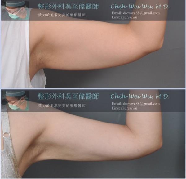 蝴蝶袖抽脂案例,上為手臂抽脂術前,下為手臂抽脂術後三個月,在眾多抽脂手術中,手臂抽脂可以說是比較不容易的部位,主要是在小小手臂中,要把環狀堆積的脂肪做均勻完整的抽除,又不能有明顯的凹凸,需要較有經驗的醫師才能做到,此案例術前脂肪堆積明顯,且有輕微下垂,抽脂後可見明顯改善,肌肉線條變得較好看,手也變的細緻許多