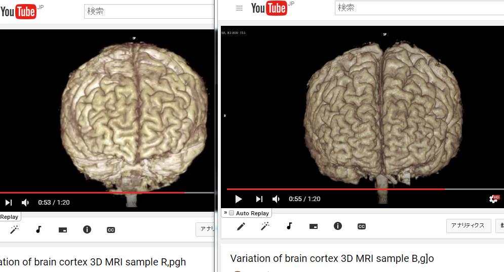 図:脳の体積の比較