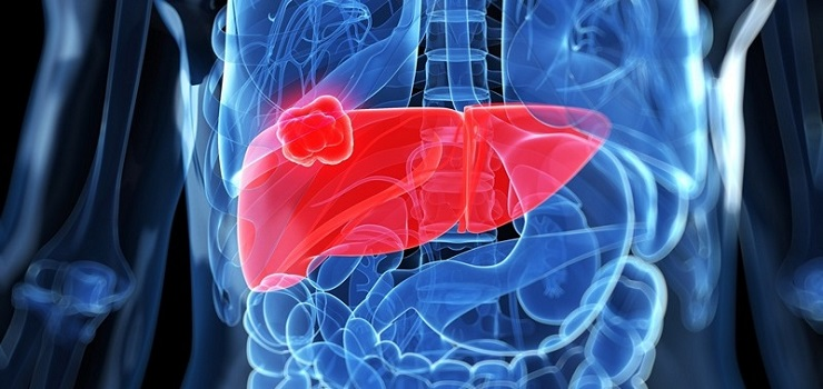 Here's an Explanation of What it was Liver Cancer, Symptoms and How to Treatment