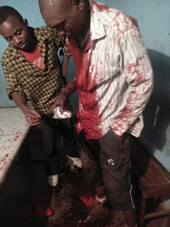 zimbabwe stab www.physinews.com