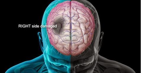 8 علامات يُرسلها الجسم قبل التعرض للسكتة الدماغية