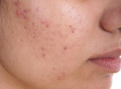 https://www.simplyeasylife.com/2018/10/acne-no-more-does-it-cure-acne-permanently-and-naturally.html