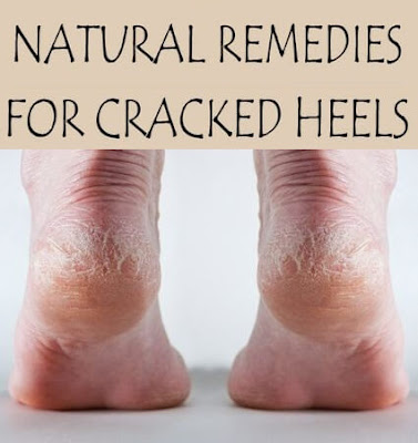 Best 10 Natural Home Remedies for Cracked Heels
