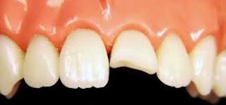 Răng bị gãy một nửa có thể phục hồi lại được không?