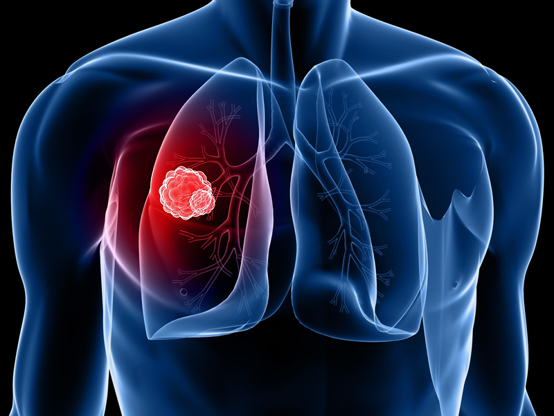 Health is the wealth: මාරාන්තික පෙනහලු පිළිකාව සාර්ථකව ජය ගනිමු!! fighting lung cancer!!
