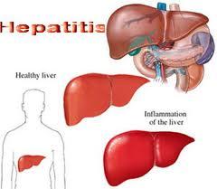 Obat Penyakit Hepatitis Tradisional