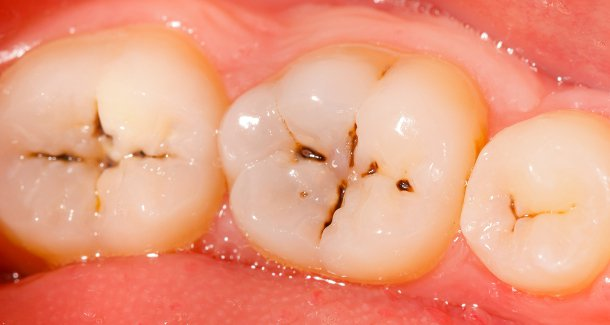 rotten teeth and caries; effects, Human Body