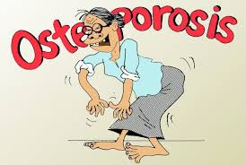 Obat Herbal Osteoporosis Yang Paling Ampuh