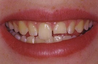Trám răng cửa bị mẻ có bền lâu không?