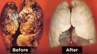 Obat Pembersih Paru Paru Dari Nikotin Rokok