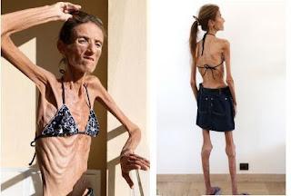 Bagaimana Resep Punya Tubuh Singset tanpa Diet Ketat & Obat?