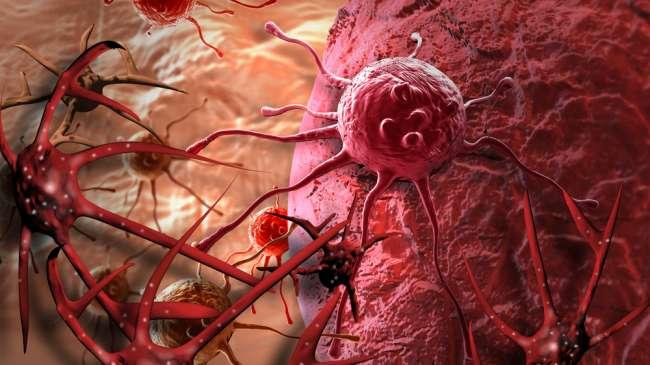 Proses Pembentukan Sel Kanker