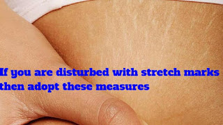 If you are disturbed with stretch marks then adopt these measures